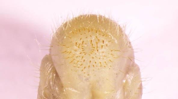 JB-larva-hairs.jpg